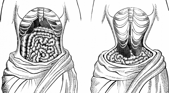A diagram showing what corsets do to the ribcage and organs. Image Source:http://upload.wikimedia.org/wikipedia/commons/5/5b/ANatural_-_BTight_lacing.png